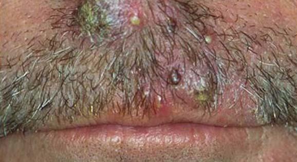 Zapalenie mieszka włosowego