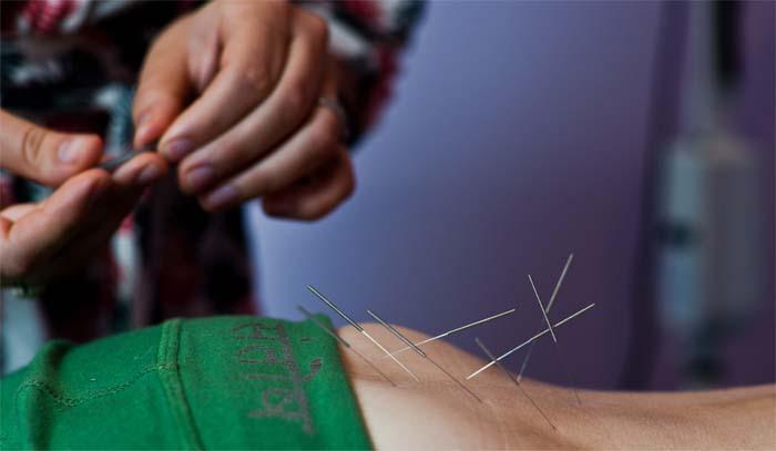 elektro akupunktura