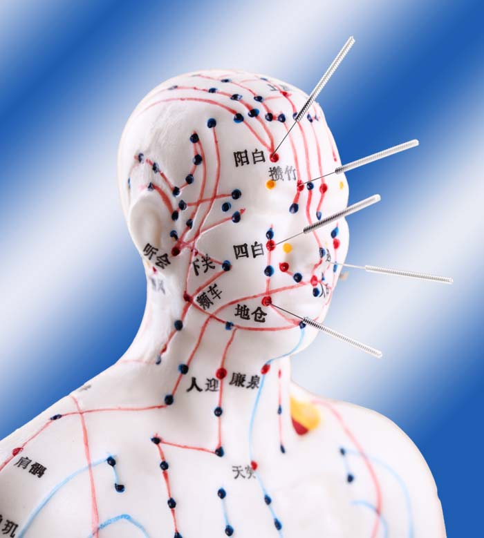 zabieg, akupunktura