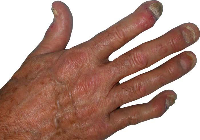 Łuszczycowe zapalenie stawów