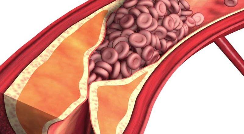 Miażdżyca tętnic jest chorobą zwyrodnieniowa wytwórczą o różnej etiologii. Prowadzi do uszkodzenia naczyń krwionośnych.